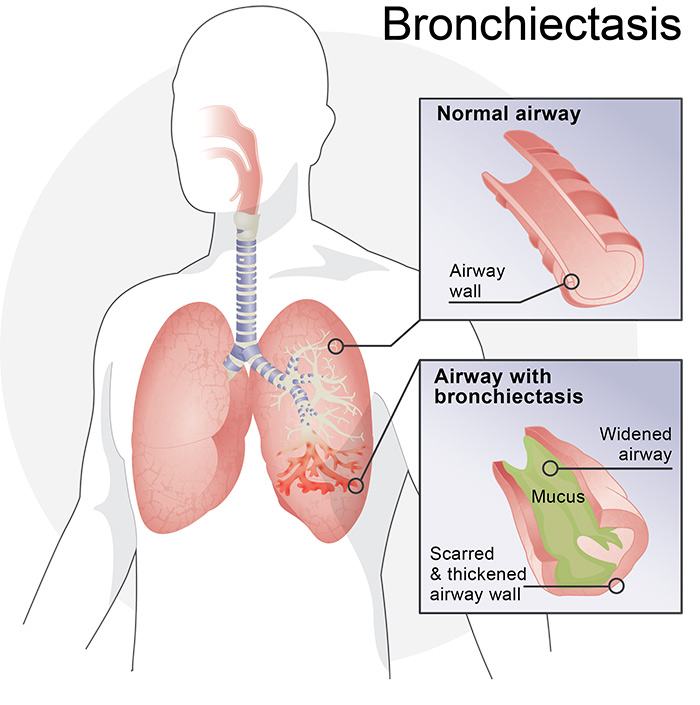 Bronchiectasis illustration