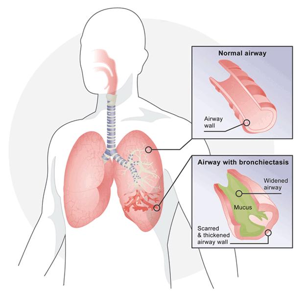 Respirtech Bronchiectasis Be